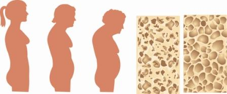 Spinal Osteoporosis Progression