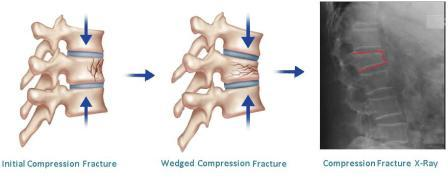 Compression fracture diagram