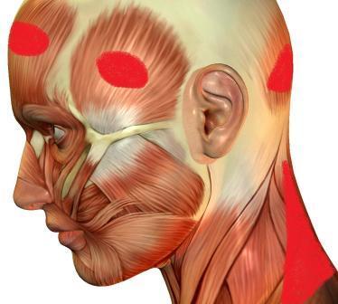 Cervicogenic Headaches Pain Points