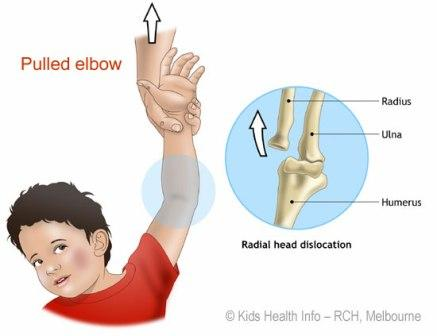 Pulled Elbow Diagram Courtesy of RCH Melbourne