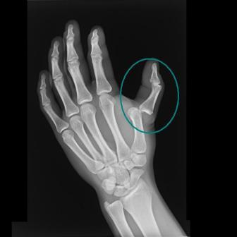 Thumb Dislocation X-ray