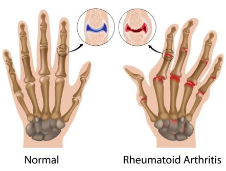 Rheumatoid arthritis joint changes to the wrist & hand