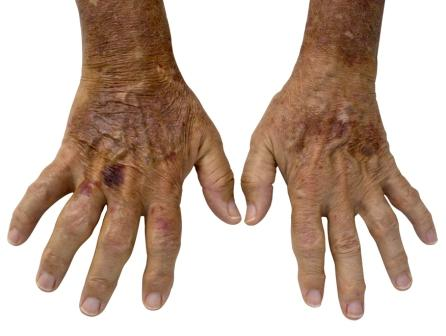 Hand affected by RA