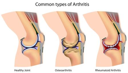 Common types of arthritis in the knee