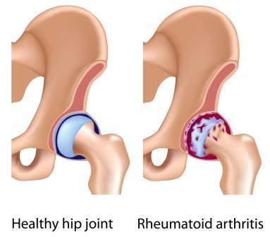 Rhuematory arthritis