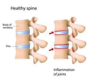 Rheumatoid arthritis in the spine