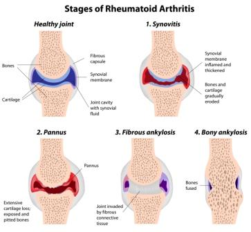 Stages of rheumatoid arthritis
