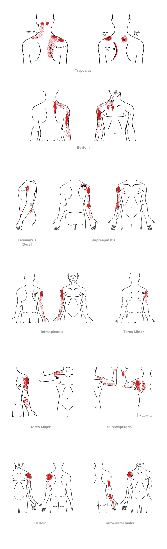 trigger point referral pain pattern for the shoulder & upper arm