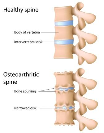 Spinal Osteoarhtritis Diagram