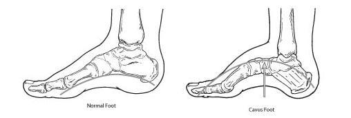 an overview of pes cavus and mortons neuroma Overview pes cavus congenital or acquired  cavus (high arch): distinct  arching of the foot  complication: morton's metatarsalgia (morton's neuroma.