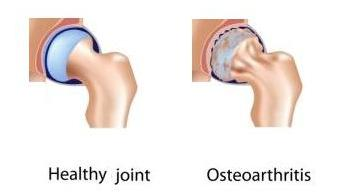 osteoarthritis shoulder pain