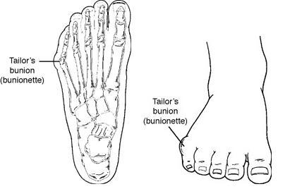 Mild Tailors Bunion