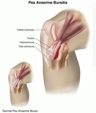 pes anserine diagram courtesy of summitmedical group