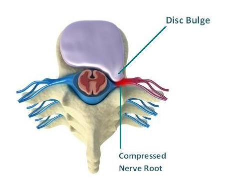 cervical disc herniation slipped disc in the neck