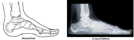 Flatfoot diagram x-ray